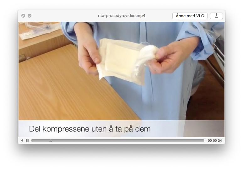 Prosedyrevideo